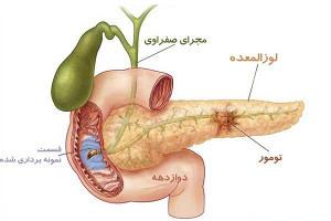 درمان گیاهی التهاب لوزالمعده
