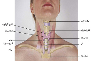 درمان هاشیموتو در طب سنتی