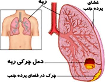 درمان بیماری آمپیم