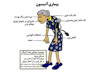 درمان گیاهی بیماری ادیسون
