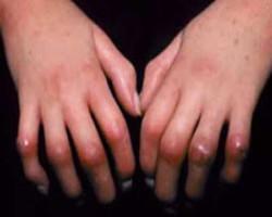 درمان اسکلرودرمی با طب سنتی