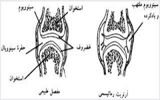 آرتریت ایدیوپاتیک جوانان