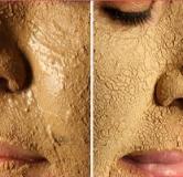 راهنمای کامل درمان جوش صورت با داروهای گیاهی / درمان جوش و آکنه