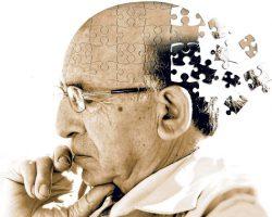 آلزایمر , برای جلوگیری از آلزایمر چه باید کرد , درمان آلزایمر با گیاهان دارویی , دلایل آلزایمر, علائم بیماری آلزایمر , بیماری آلزایمر , جلوگیری از آلزایمر , درمان آلزایمر در طب سنتی , درمان بیماری آلزایمر , درمان دارویی آلزایمر , علائم آلزایمر , علت بیماری آلزایمر , نشانه های آلزایمر
