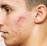روشهای درمان خانگی برای از بین بردن جوش صورت