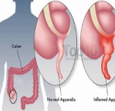 راهنمای کامل درمان آپاندیس در طب سنتی