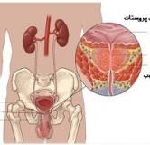 درمان گیاهی پروستاتیت مزمن