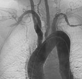 راهنمای بیماری آرتریت تاکایاسو