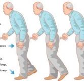 راهنمای پیشگیری و درمان پارکینسون با طب سنتی و طب مدرن