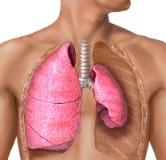 راهنمای درمان بیماری ریوی پنوموتوراکس