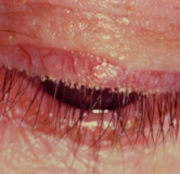 راهنمای شوره مژه چشم / درمان بلفاریت با طب سنتی و طب کلاسیک