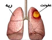 آبسه ریه چیست ؟ بررسی کامل به همراه ارائه درمان