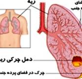 معرفی بیماری آمپیم به همراه راههای پیشگیری و درمان
