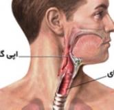 اپی گلوتیت یا نوعی از عفونت گلو در کودکان