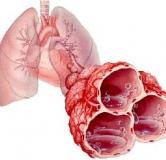 ادم حاد ریه و راهنمای درمان ادم ریه