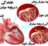 راهنمای جامع درمان افتادگی دریچه میترال در طب سنتی و مدرن