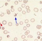 راهنمای بیماری اسفروسیتوز