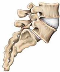 اسپوندیلولیستزیس