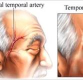 آرتریت تمپورال ،بررسی و راهکارهای پیش رو