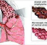 راهکارهایی برای پیشگیری و درمان بیماری آمفیزم ریوی