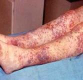 بیماری پلی آرتریت گرهی و روشهای درمانی