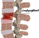 راهنمای جامع درمان گیاهی عفونت استخوان