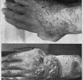 شناخت بیماری بلاستومایکوز یا بیماری شیکاگو
