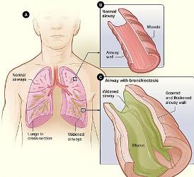 درمان برونشکتازی