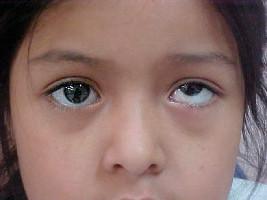 انحراف چشم