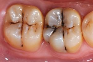 پوسیدگی دندان