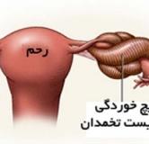 پیچ خوردگی تخمدان و روش درمان