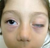پتوز یا افتادگی پلک چشم / درمان افتادگی پلک در طب سنتی