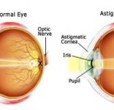 راهنمای درمان آستیگماتیسم چشم با لیزر ، عینک و عمل جراحی