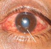 راهکارهای پیشگیرانه و درمانی بیماری کراتیت یا التهاب قرنیه