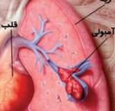 راهنمای کامل درمان آمبولی ریه در طب سنتی و پزشکی مدرن