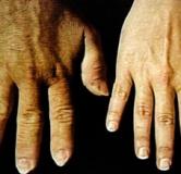 راهنمای بیماری آکرومگالی و درمان های رایج