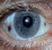 مختصری درباره بیماری آلکاپتونوری