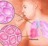 درمان خانگی پنومونی / درمان ذات الریه در طب سنتی