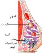 آبسه پستان و روشهای درمان آبسه پستانی