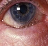 راهنمای بیماری انتروپیون یا برگشتن لبه پلک ها