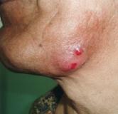 راهنمای بیماری اکتینومیکوز