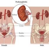 راهنمای بیماری کلیوی پیلونفریت