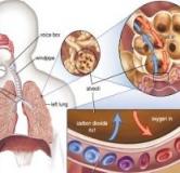 راهنمای درمان بیماری اسیدوز