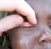 شناخت بیماری چشمی تراخم و راههای درمان