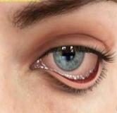 راهنمای بیماری اکتروپیون یا برون چرخش پلک