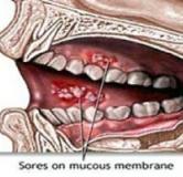 روش های درمان بیماری استوماتیت یا التهاب دهان