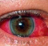 راهنمای بیماری چشمی التهاب عنبیه