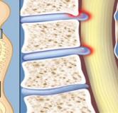 درمان تنگی کانال نخاعی با داروهای گیاهی
