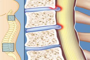 تنگی کانال نخاعی