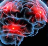 راهنمای پیشگیری و درمان خونریزی مغزی